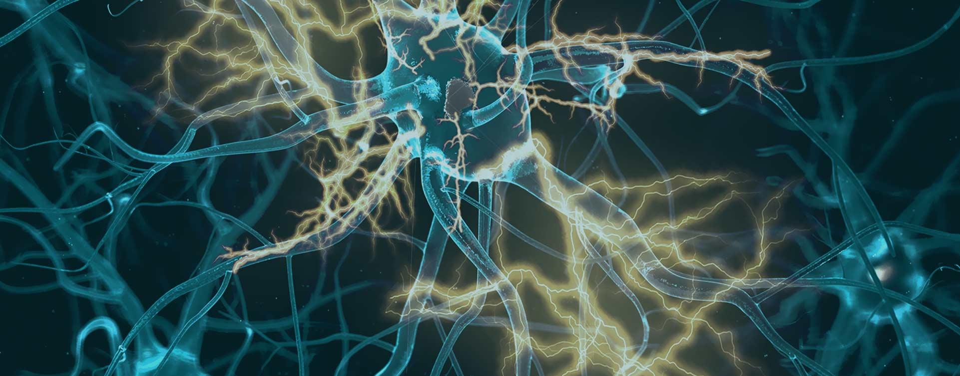 demens-hjarnan-nervecell-nova-omsorg